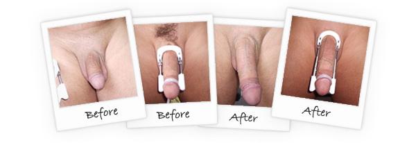 proextender before after