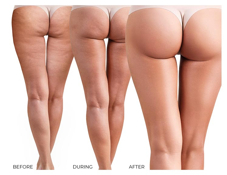 HerSolution Booty Sculpt System Before and After