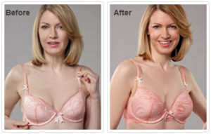 Naturaful before and after