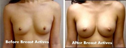 Breast Actives Cream Review Before And After Pictures And Video