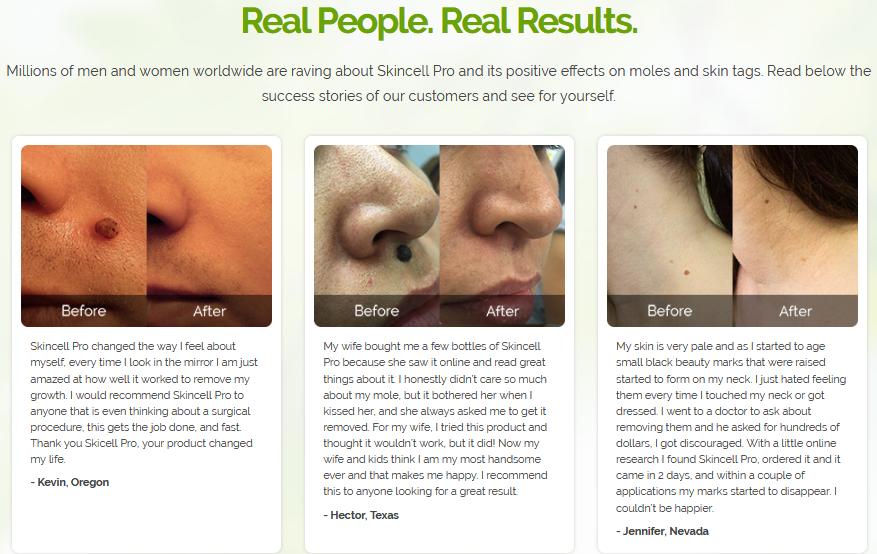 Skincell Pro testimonials