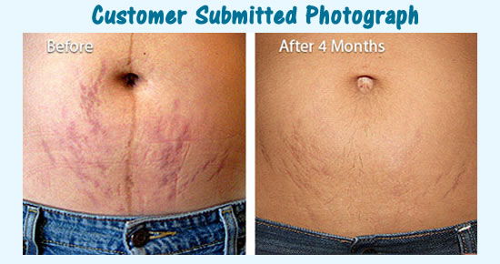 trilastin customer before after pic
